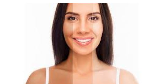 Skin Whitening Surgery – What it is all about?